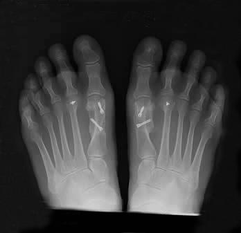 Weil Schwartz Osteotomy -