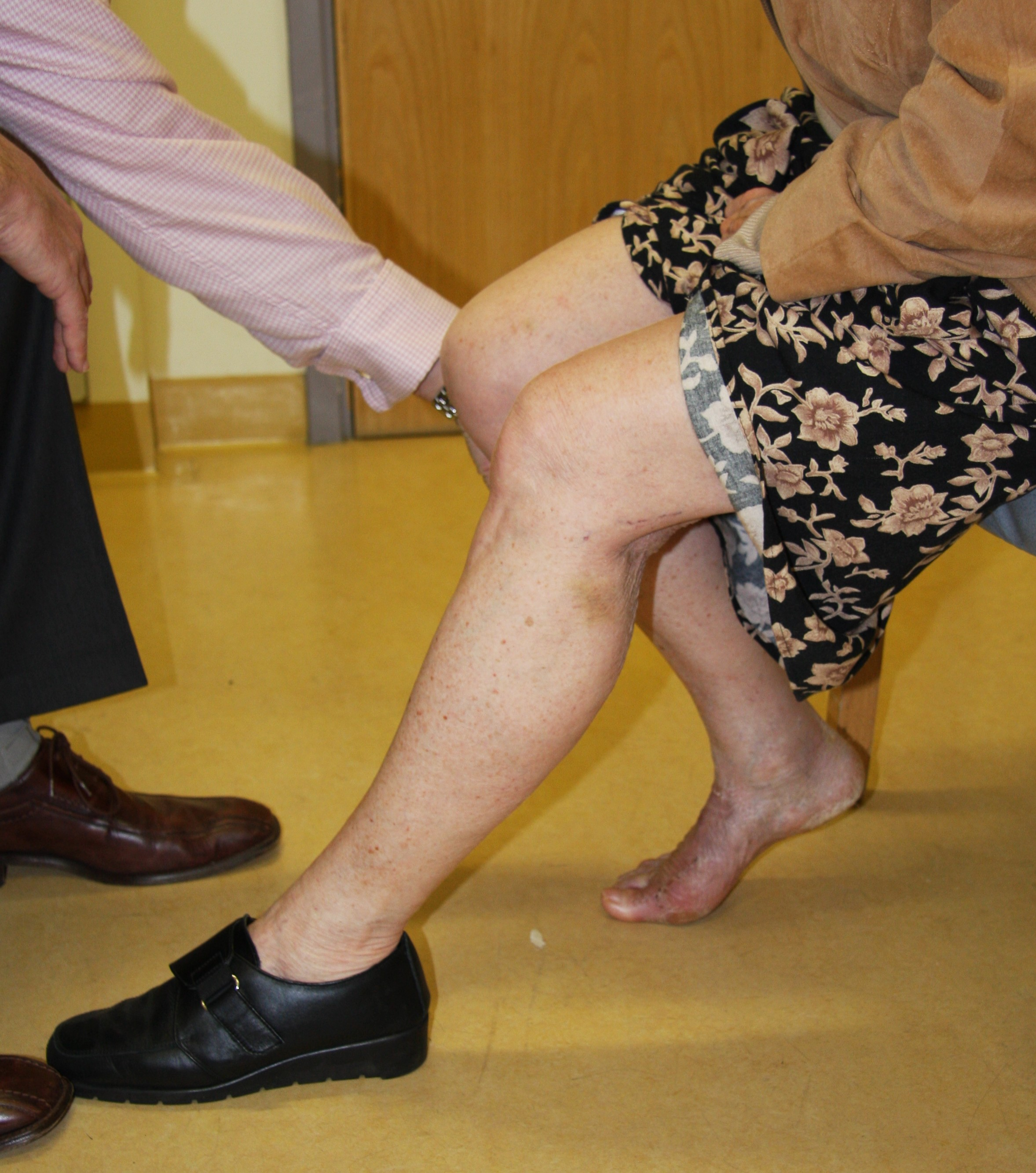 Exercises after surgery -