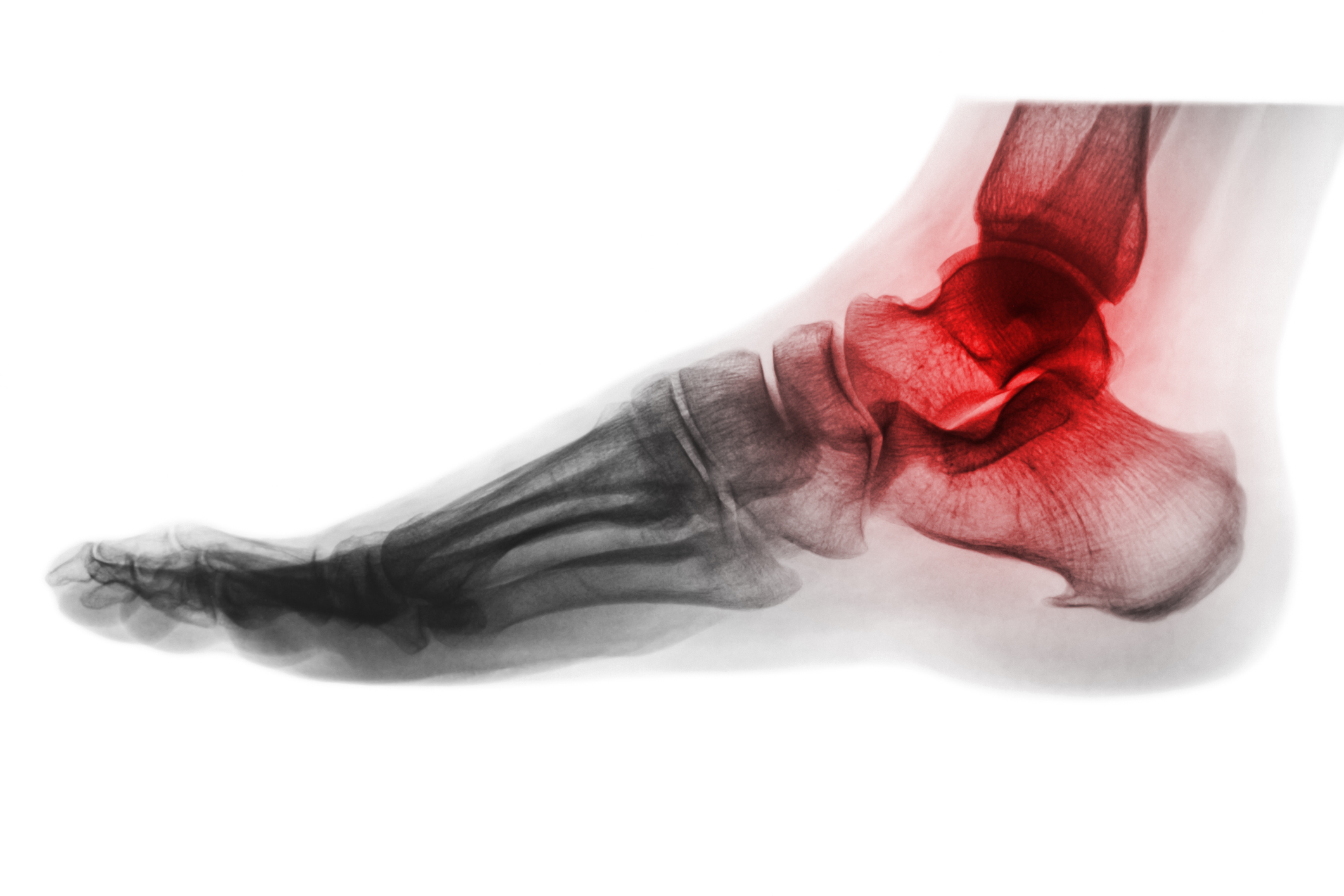 Hindfoot Arthritis -