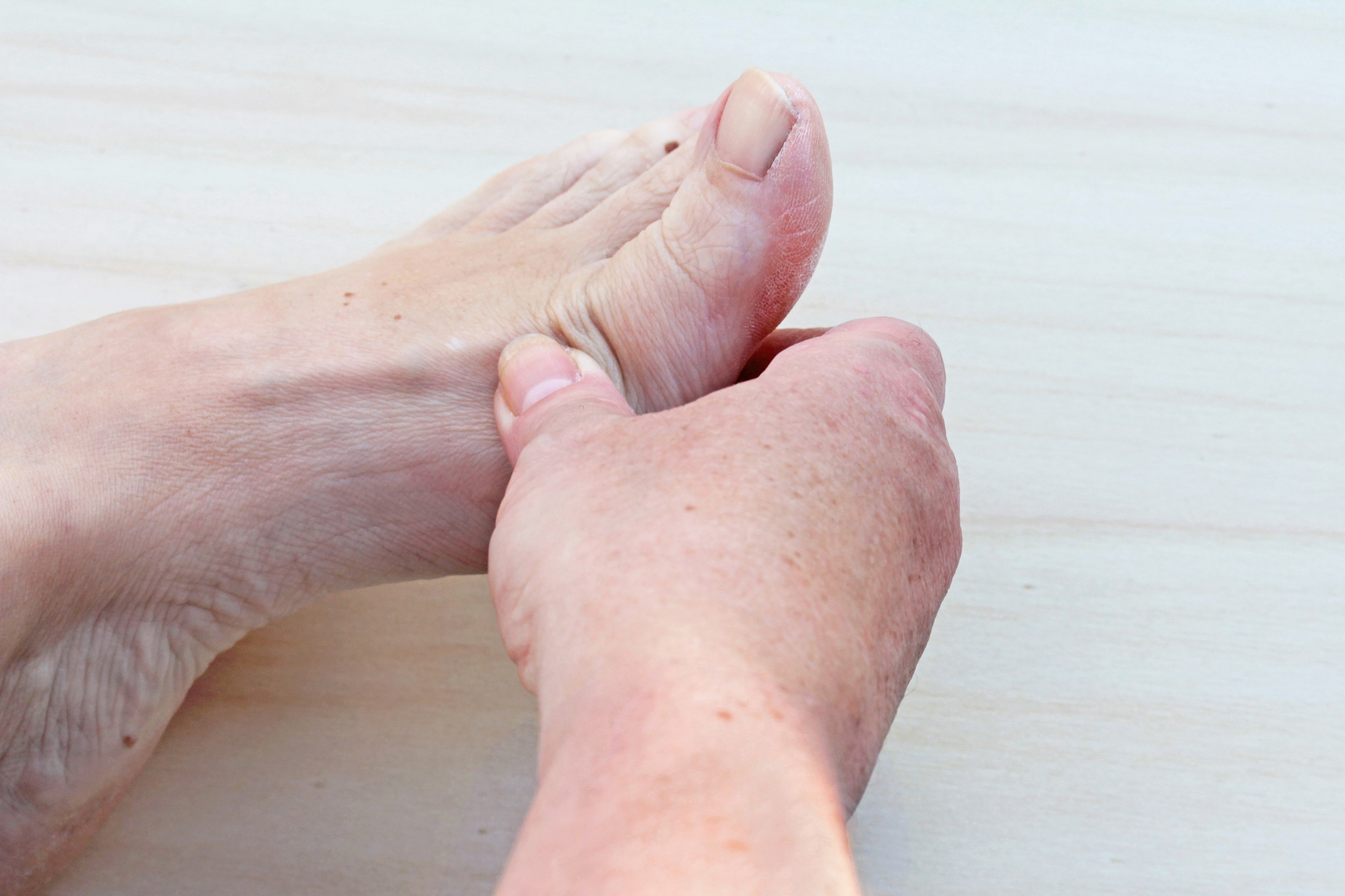 Arthritis of the big toe -