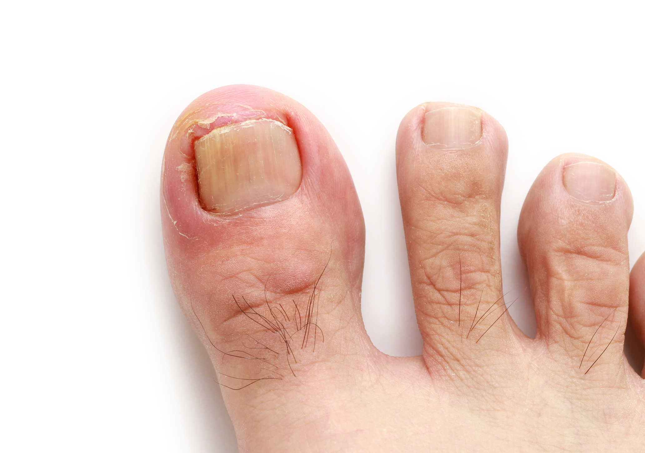 Ingrown Toenails -