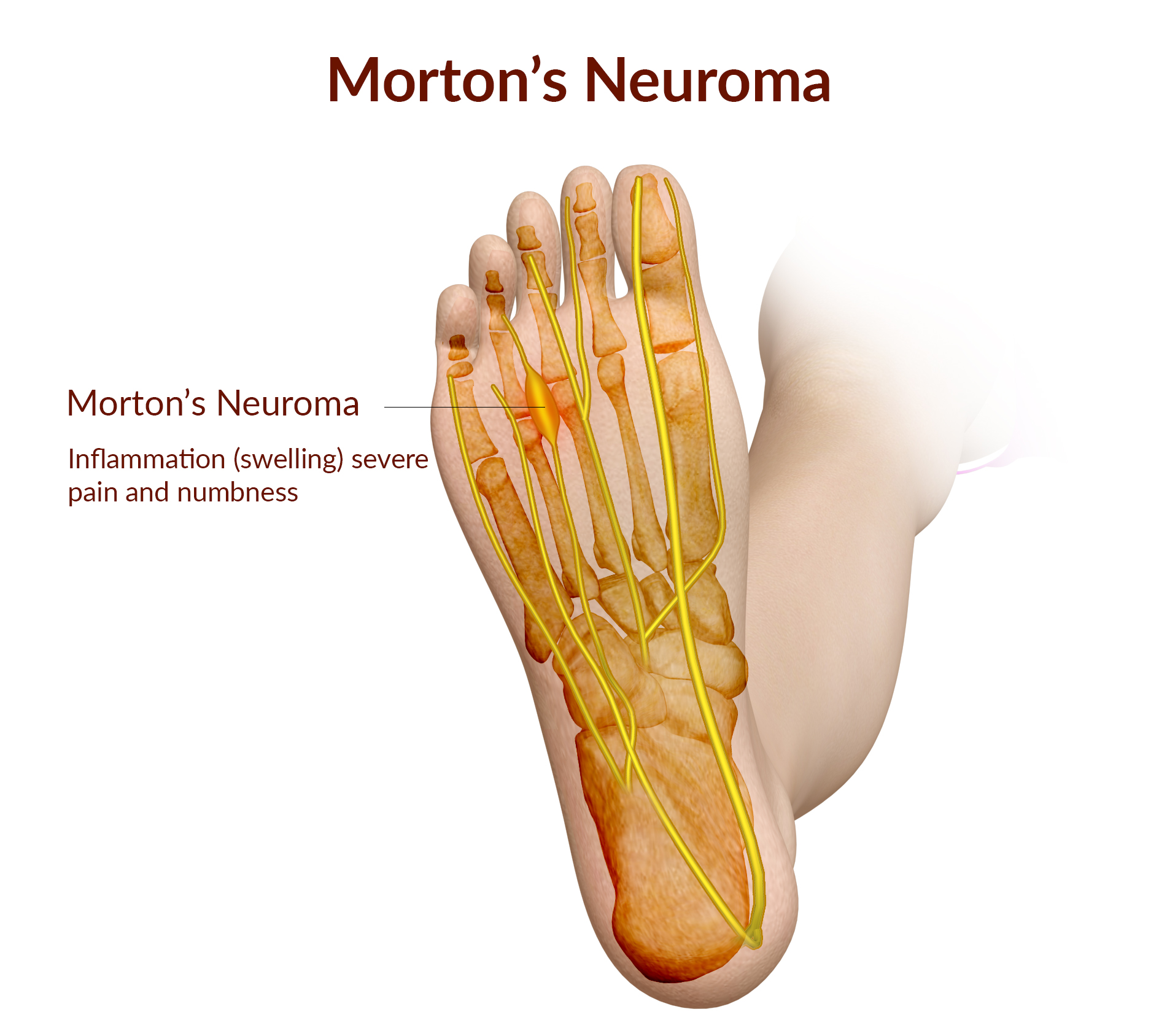 MORTONS-NEUROMA-WITH LABELS.jpg