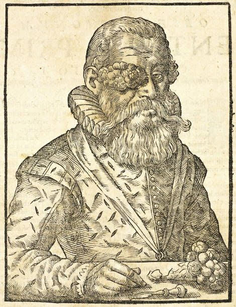 Guilhelmus Fabricius Hildanus, Opera quae extant omnia (Complete Works). Frankfurt: J. Beyer, 1646. This woodcut immortalizes the eye tumor of Claude Mayor, the ruler of Lutry, a small town on the lake near Lausanne, Switzerland.