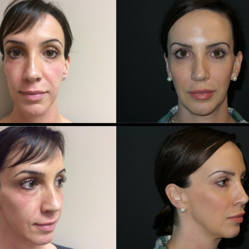 Natural looking results of facial rejuvenation with Botox and fillers