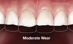 moderate-tooth-wear.jpg