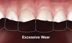 excessive-tooth-wear.jpg