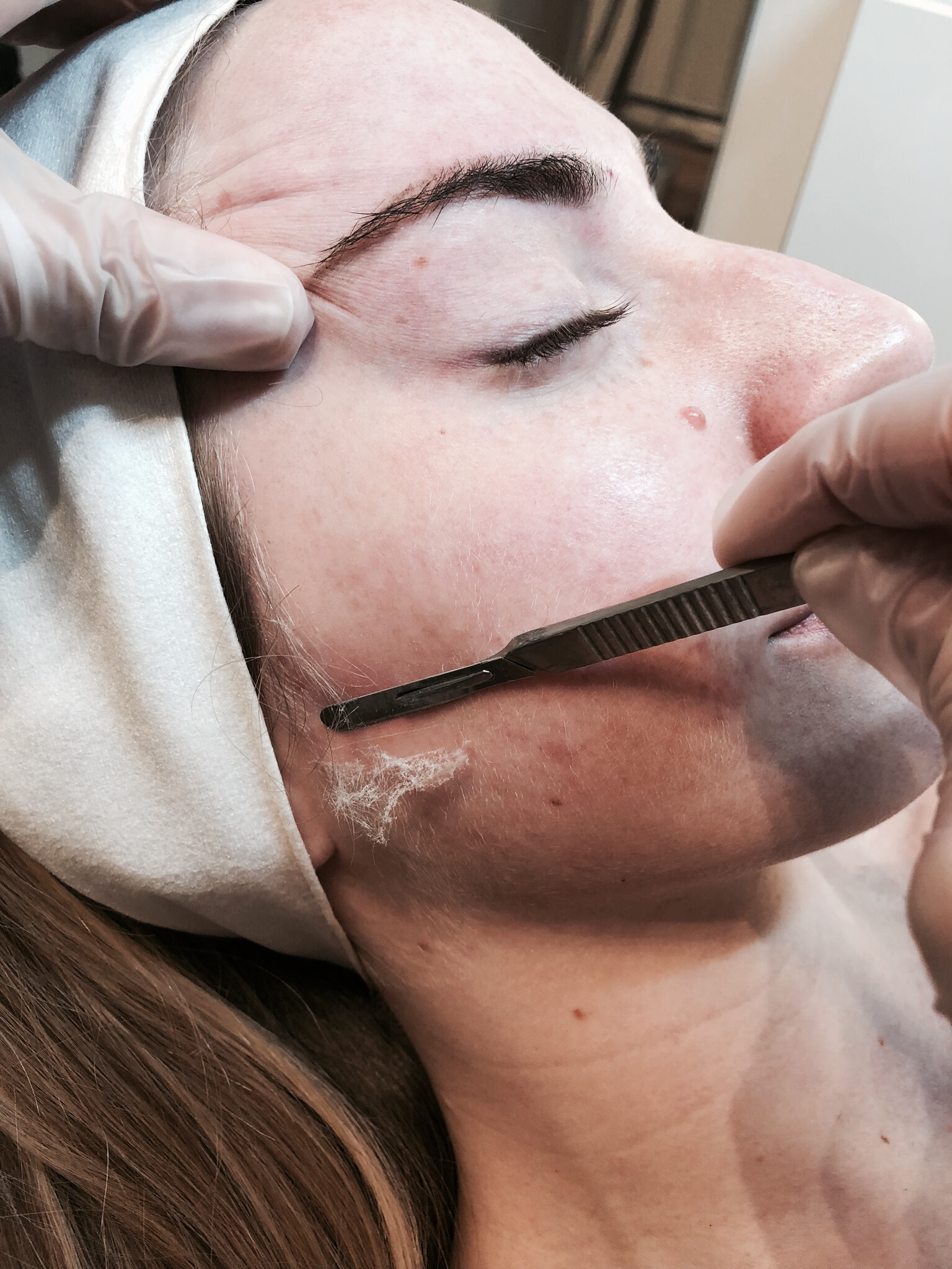 dermaplaning facial skin care treatment vancouver yaletown where to go maryamcollahi glowing