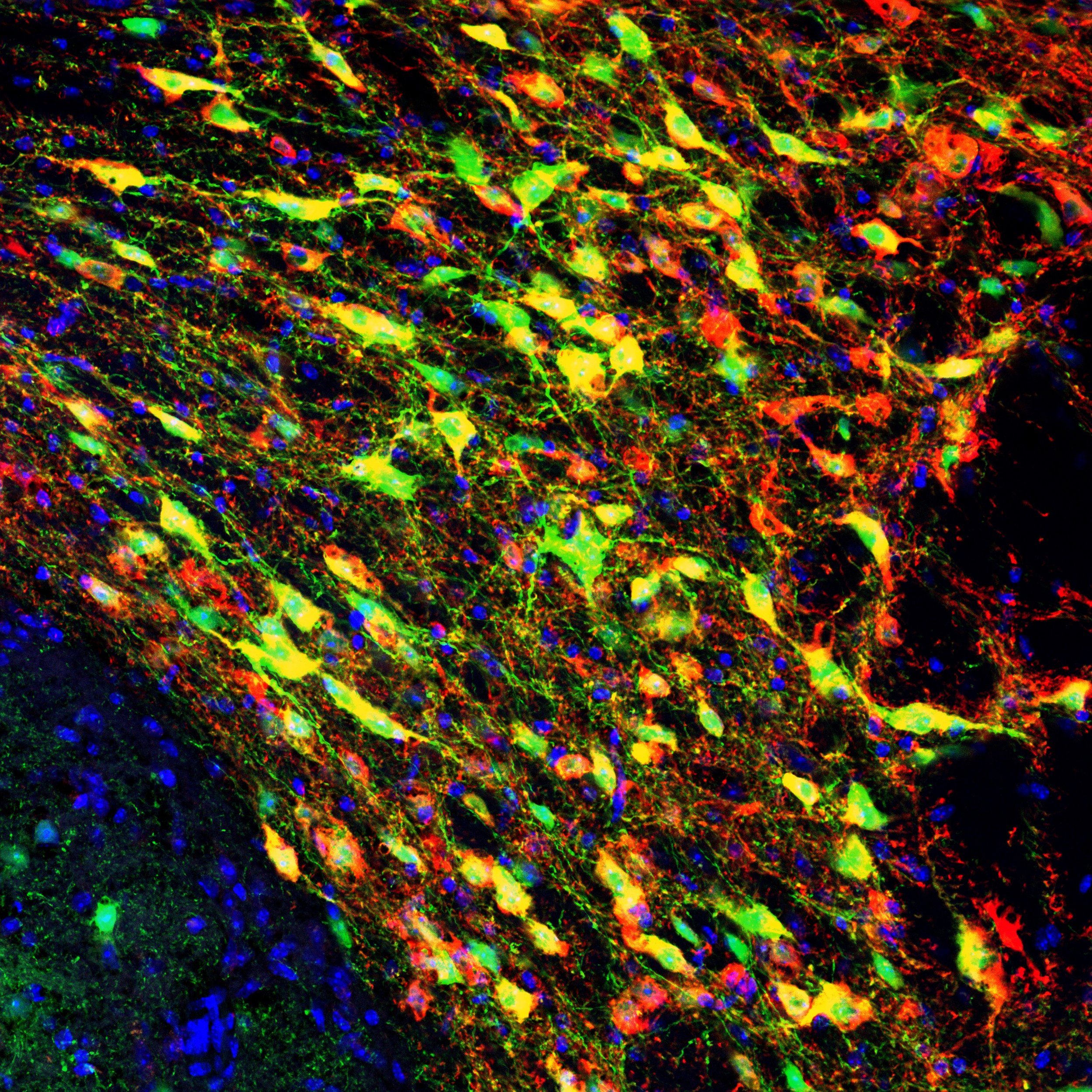 eYFP (green) expression in TH+ neurons (red) of the VTA