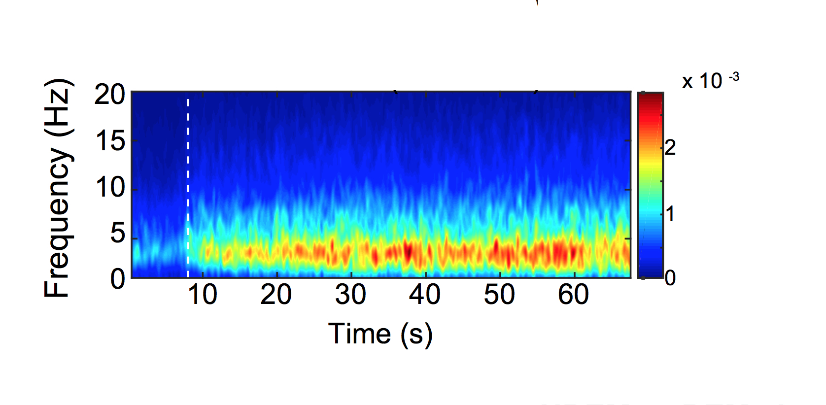 EEG spectrogram during a wake-to-NREM sleep transition