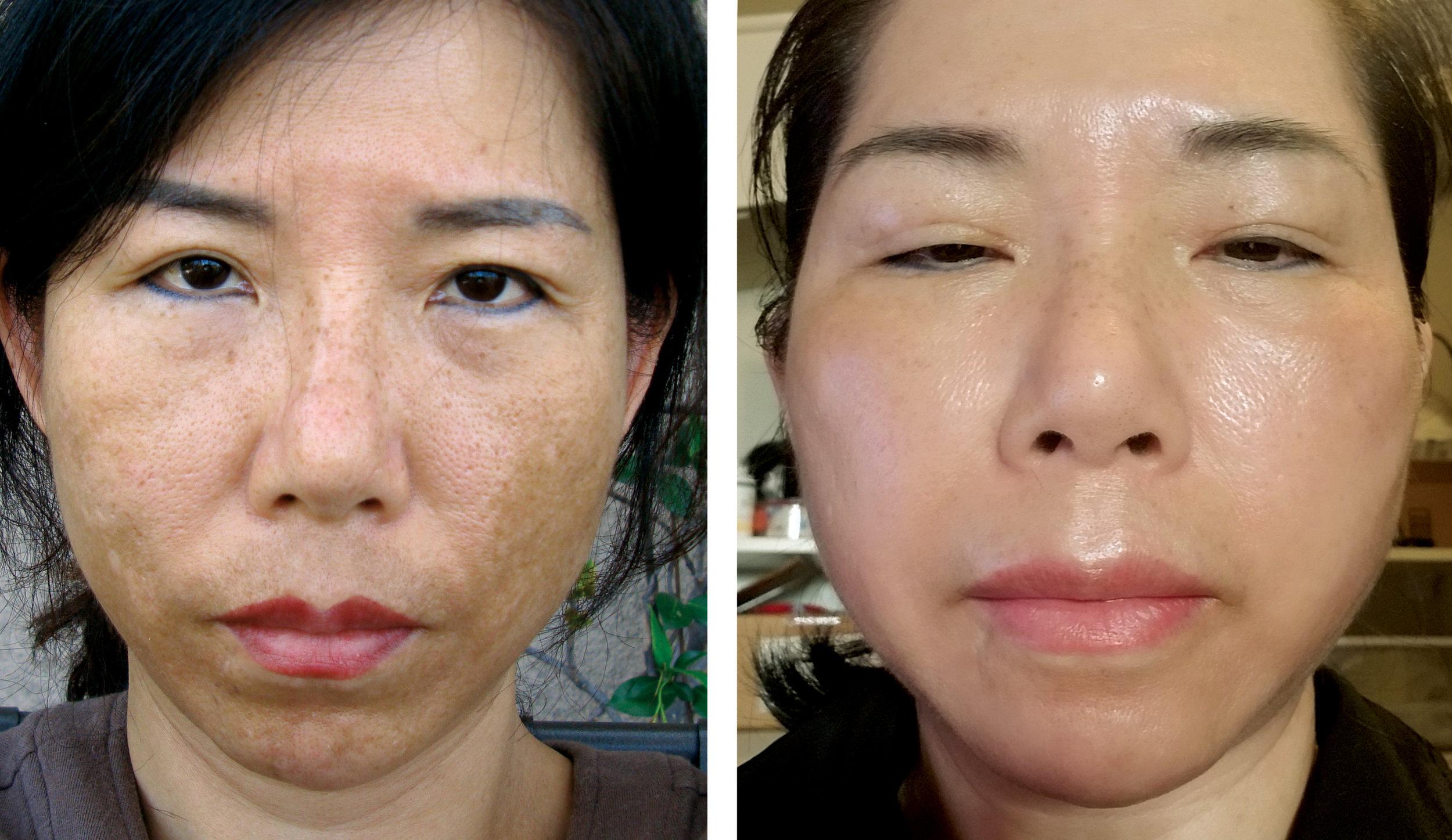 Before Depigmentation Peel —————— After 8 Weeks