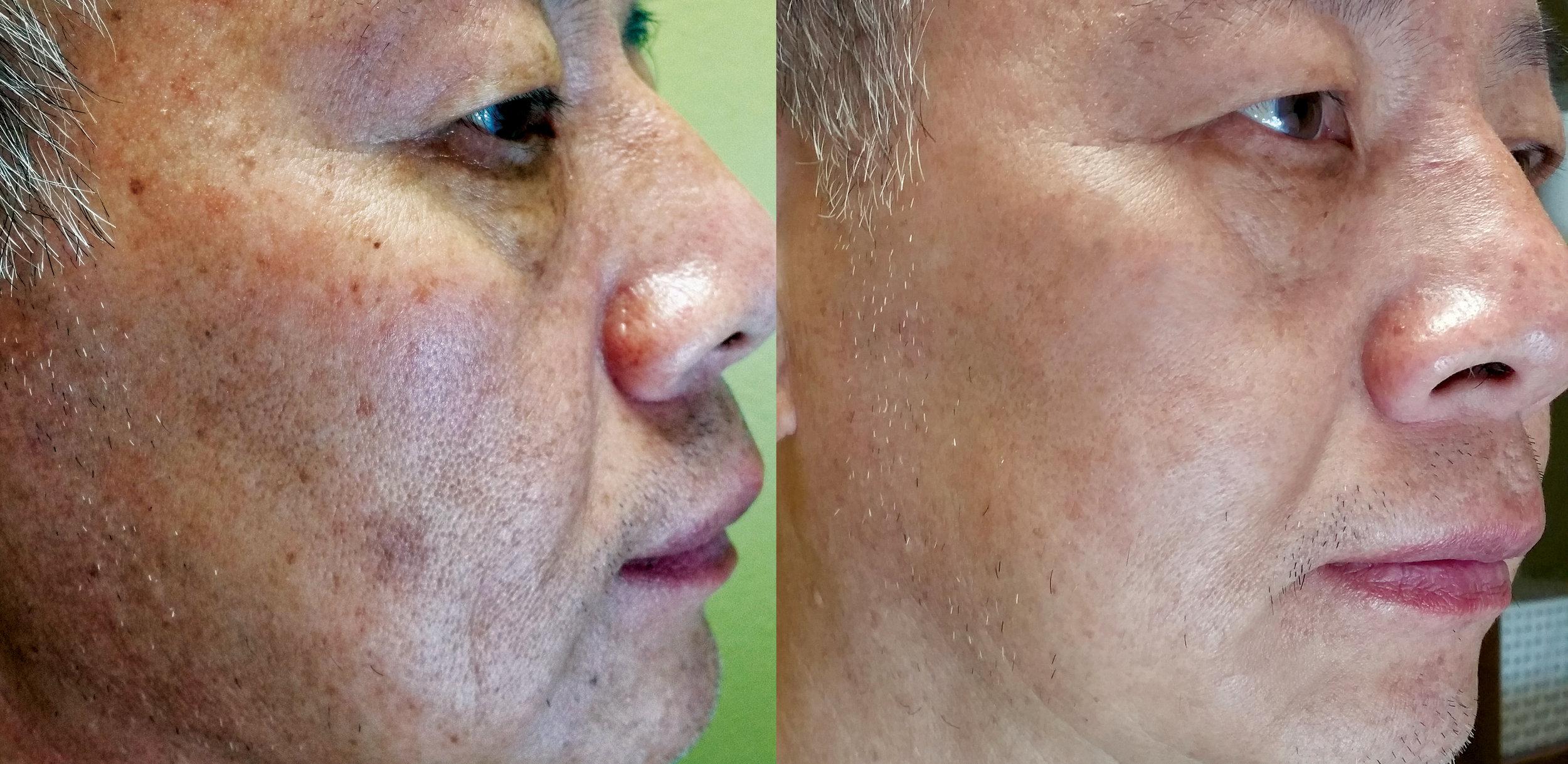Before Depigmentation Peel —————- After 4 Weeks