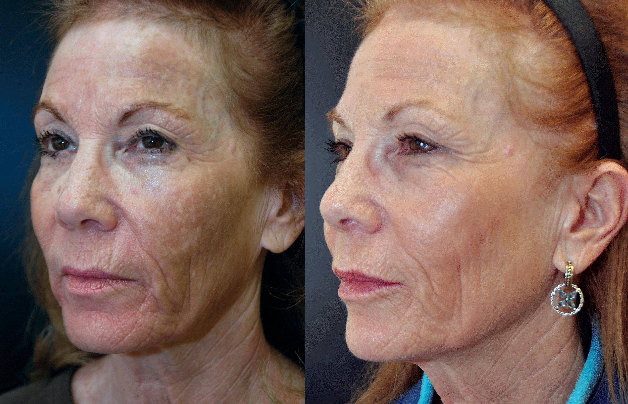 Before Depigmentation —————- Peel After 8 Weeks