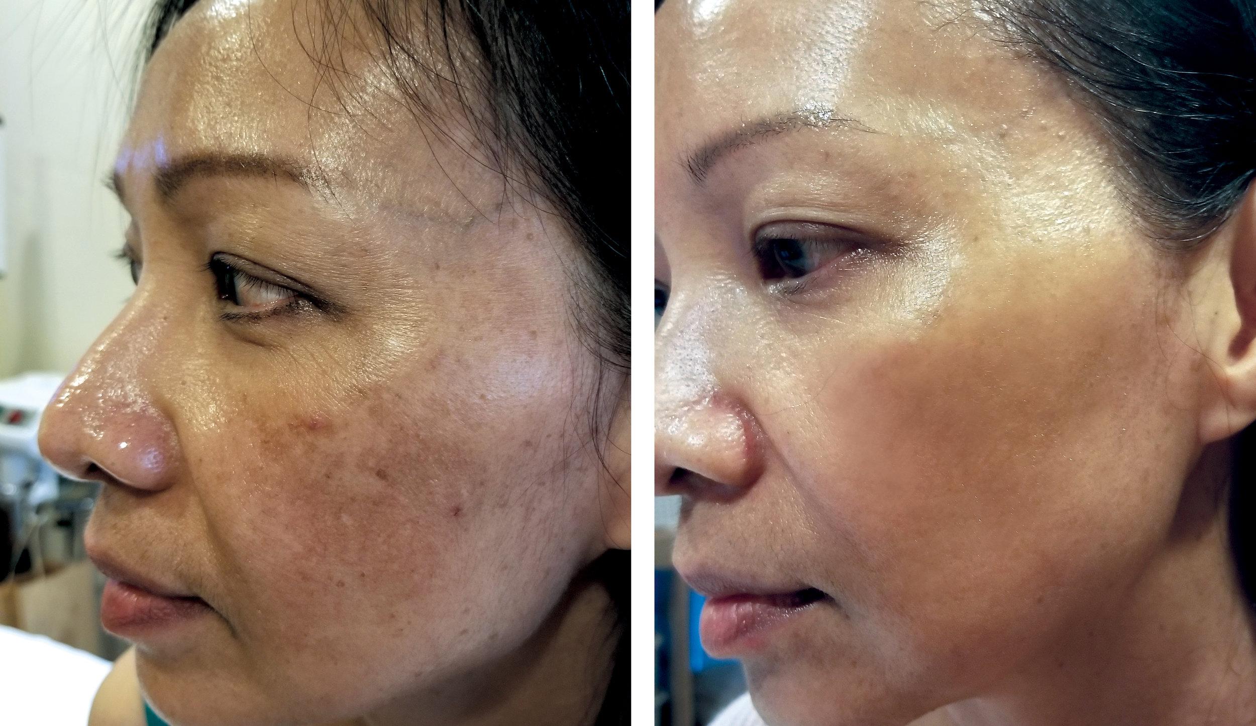 Before Depigmentation —————— Peel After 8 Weeks