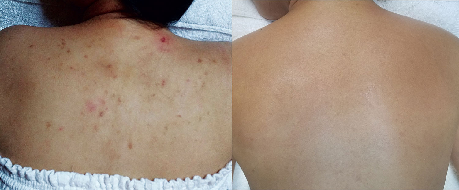 Before Acne Scare Treatment—————— After 8 Weeks