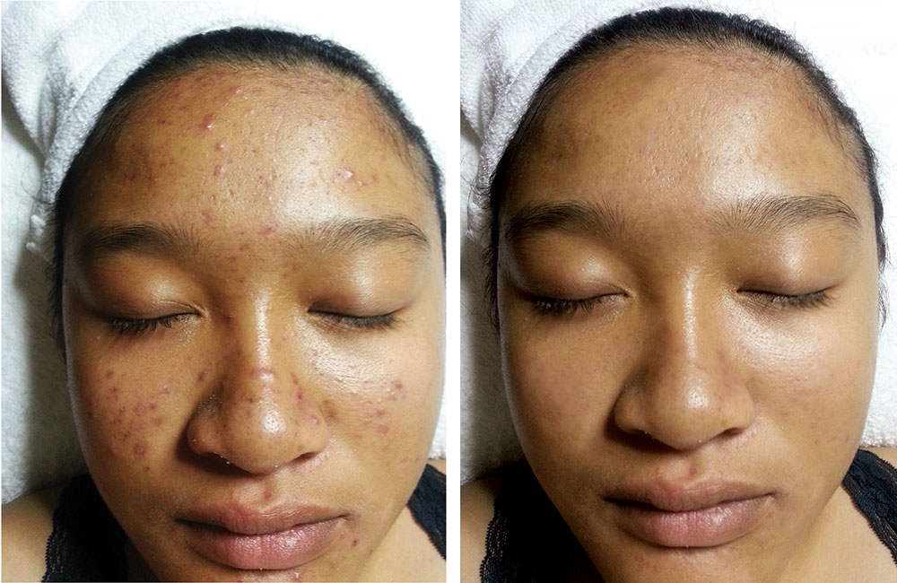 Before Depigmentation Peel —————- After 4 Weeks