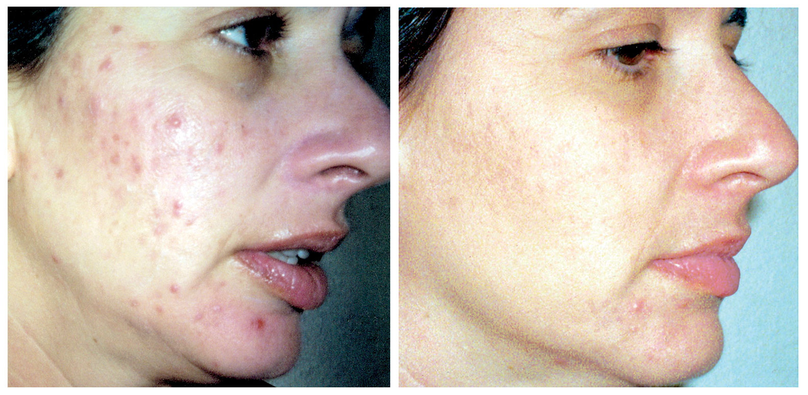 Before Depigmentation —————— Peel After 8 Weeks