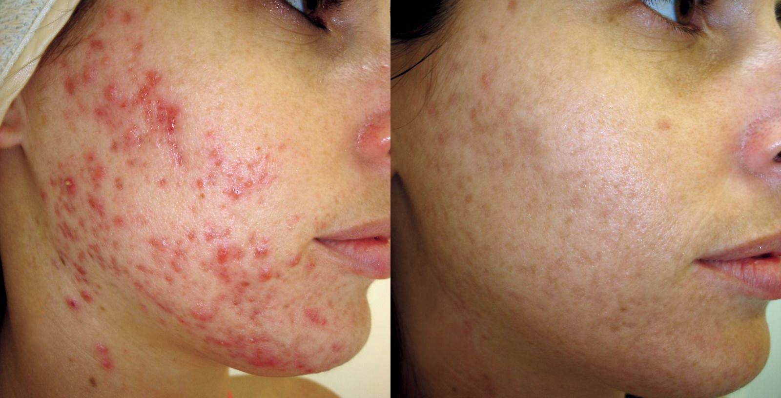 Before Acne Scar Treatment —————- After 12 Weeks