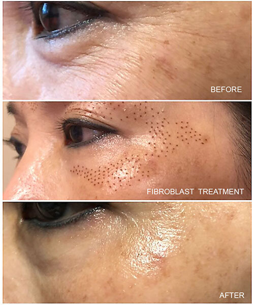Fibroblast-before-after.jpg