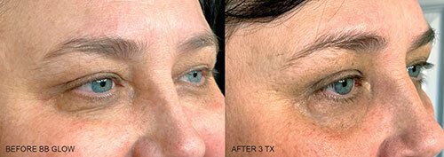 BB-GLOW-BEFORE-AFTER-5.jpg