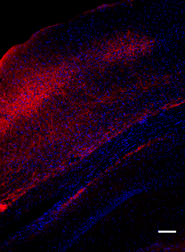 Expression of mCherry (red) in vGluT2 expressing neurons of the visual thalamus projecting axons into the primary visual cortex, counter stained with DAPI (blue).scale 100 microns
