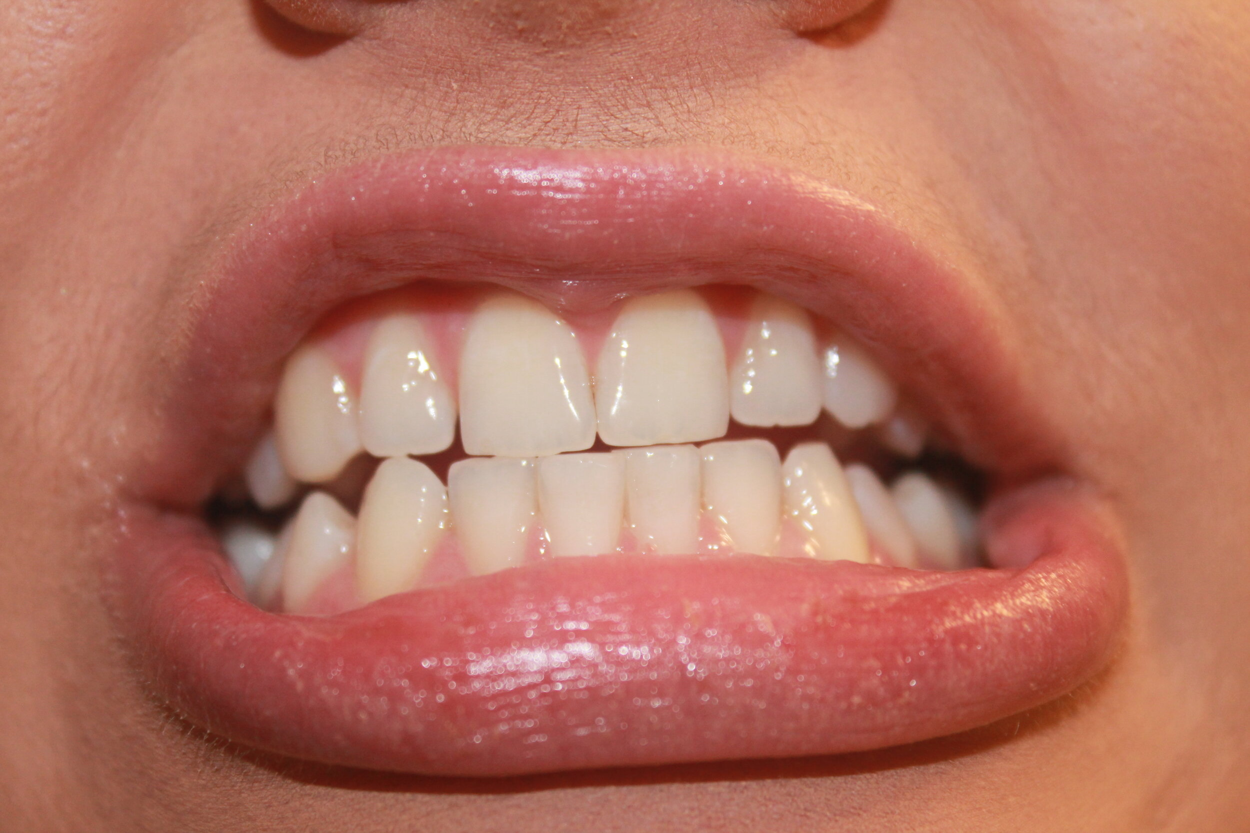 After Teeth Whitening -