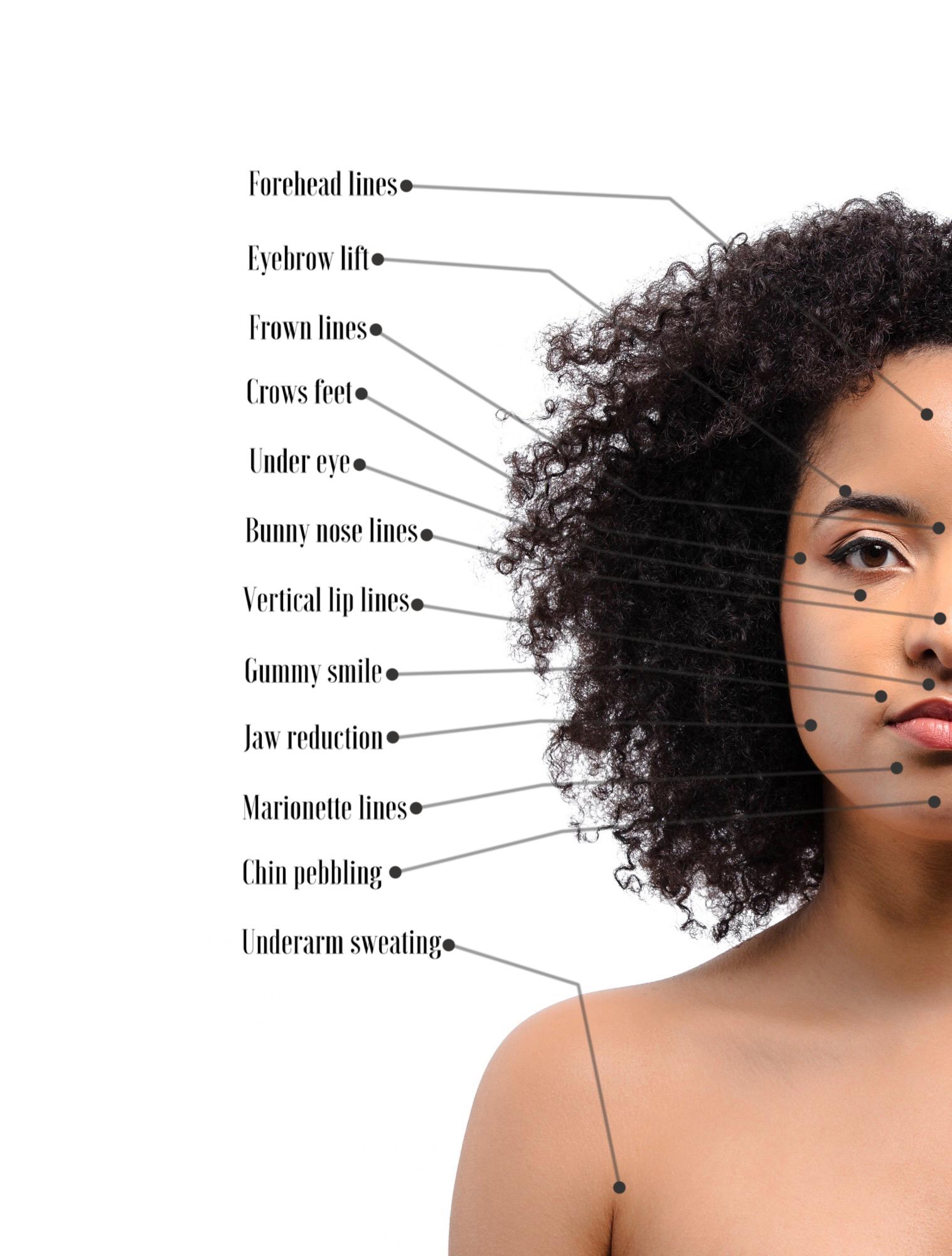 Anti Wrinkle Injections Diagram.jpg