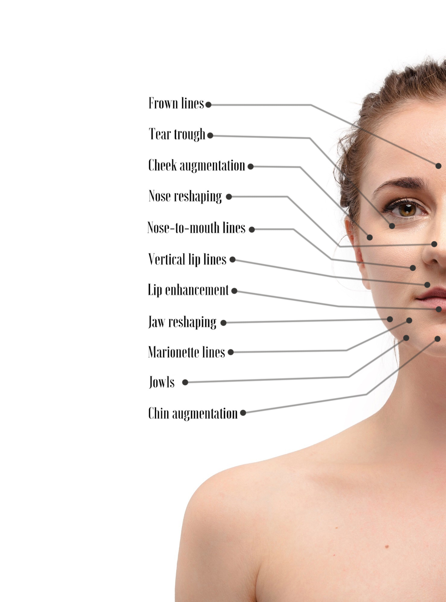 Dermal fillers Diagram.jpg