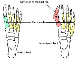 bunion doctor podiatrist florida clearwater tampa st petersburgh