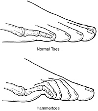 hammertoes clearwater tampa st petersburgh surgery correction