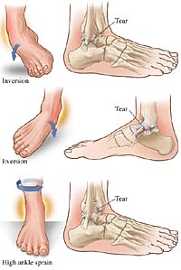 clearwater, sun city center town n country, tampa, foot pain ankle sprain
