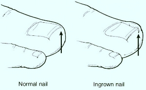 ingrown toenails clearwater tampa st petersburg fl sun center city town n country podiatrist
