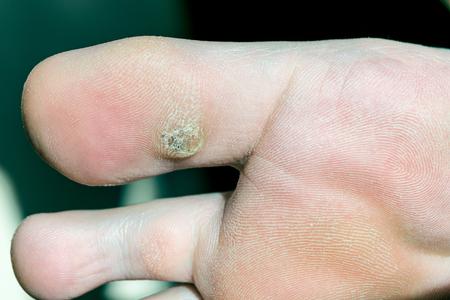 wart on foot toe)