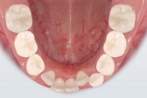 Problems Losing Teeth