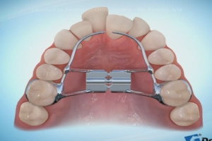 Arch Expanders