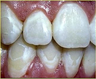 White spot lesions.jpg