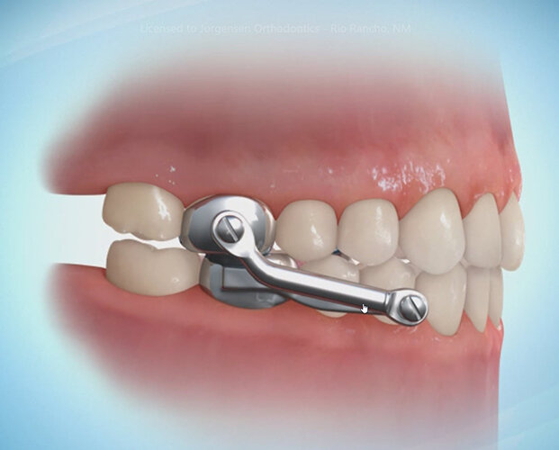 The Main Principles Of Affordable Braces