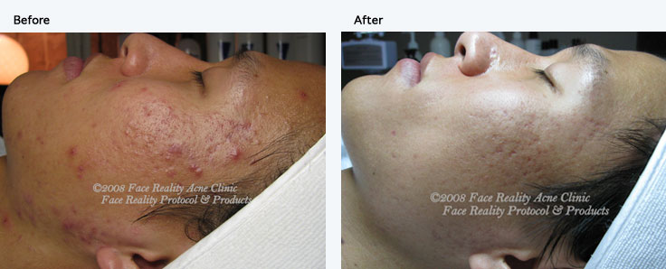 Acne Treatment Buffalo, NY