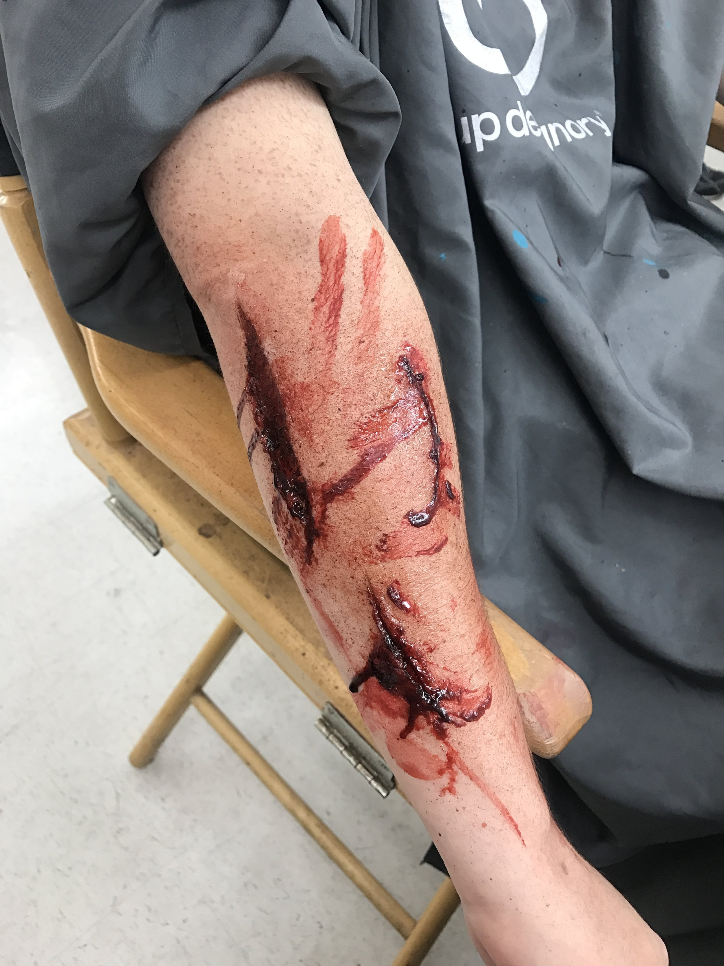 LACERATIONS USING 3RD DEGREE