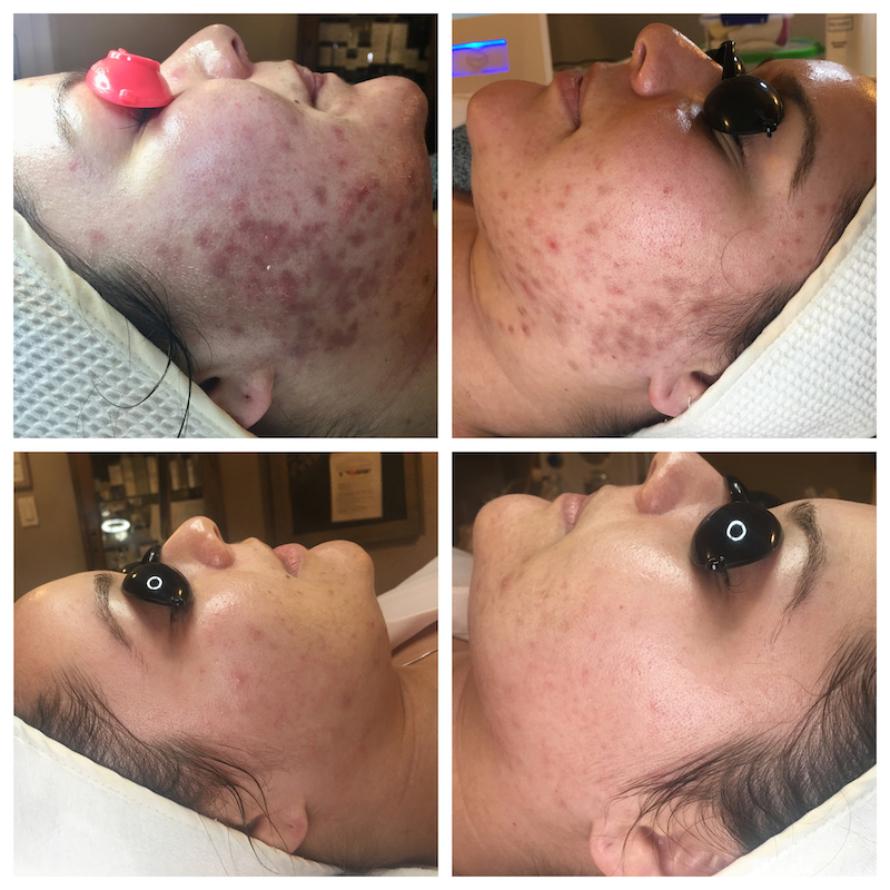 Client that came in after being treated by the Derm with products that were too much for her skin. Her skin was so sensitive and the acne had not Improved. The redness (acne post inflammatory hyperpigmentation) took about six months to fade away. Her skin is no longer sensitive.