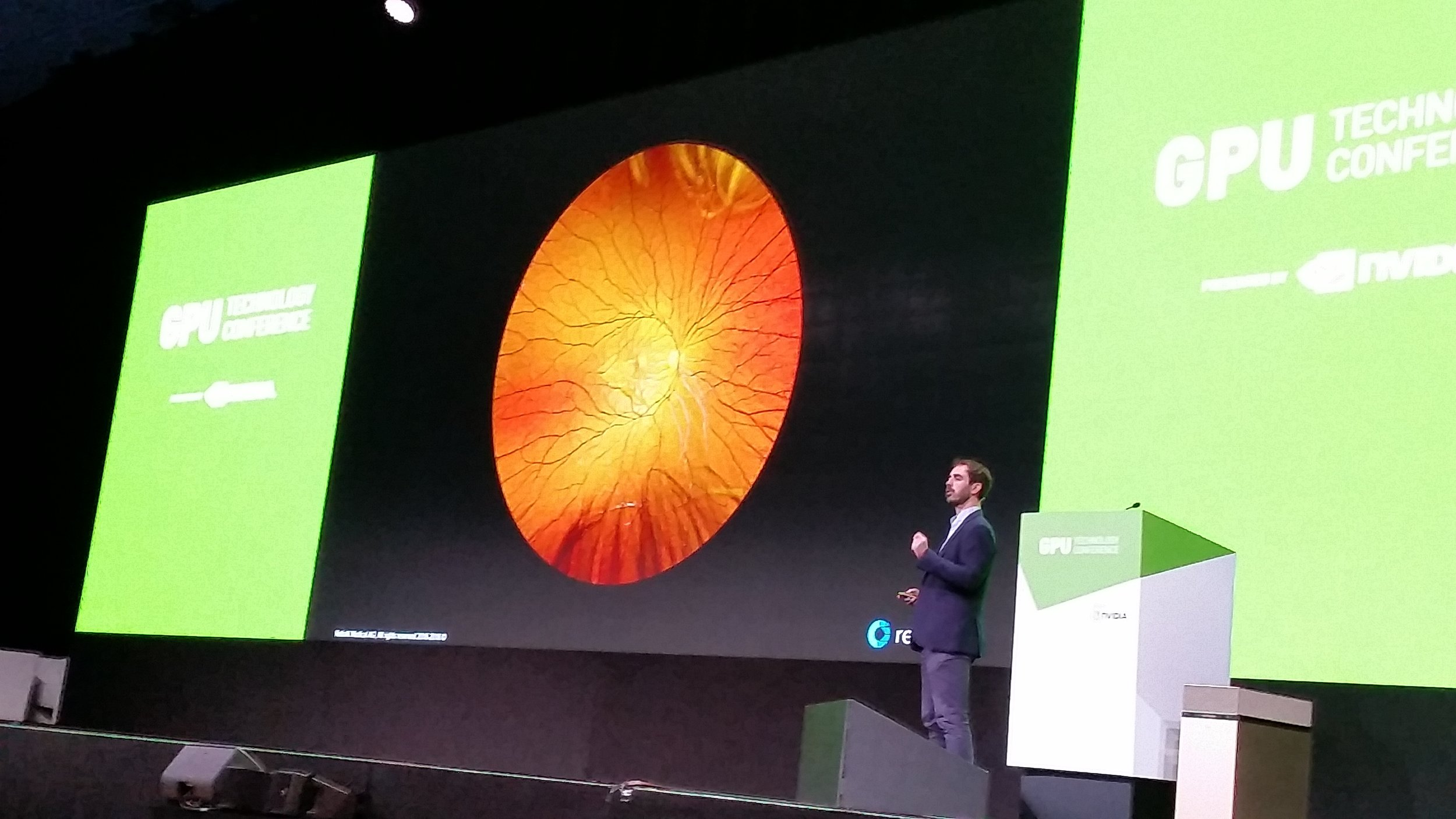 NVIDIA GTC EUROPE 2018 [october'18] - RetinAI was one of the 10 startup to present on the NVIDIA GTC Europe Inception Awards 2018. Hundreds of applications, 70 teams in the pitching semi-finals and only 10 teams in the final.What a great opportunity to show the world how Artificial Intelligence is going to change the standard of eye care in 2019.