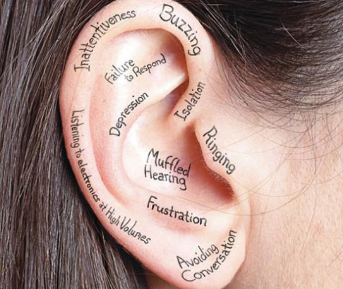 Hart Hearing Rochester, NY Hearing Loss. A woman's ear with words written on it such as 'Buzzing', 'Depression', and 'Frustration'.