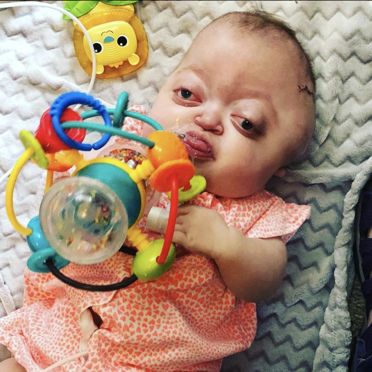 Amanda and Emmy - Pfeiffer Syndrome Awareness