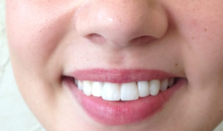 Dental Bridges are a good option for replacing teeth.