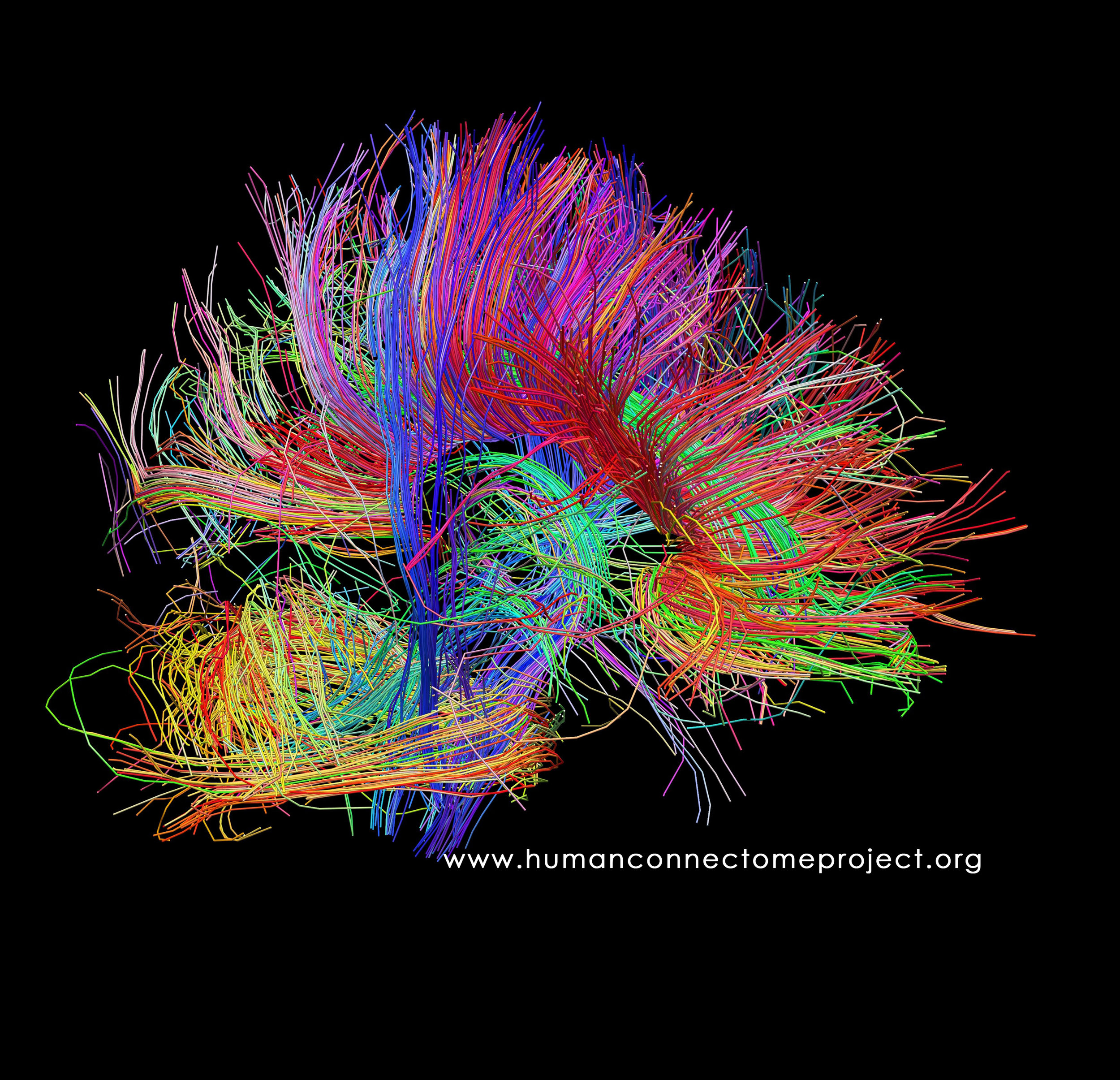The image above captures on camera the neural pathways of a real human brain. on the left is a real human brain. The colour-coded ed lines show are neural pathways caught on camera. They are colour coded based on their the directional flow within in the brain. This image was made available to us courtesy of the Laboratory of Neuro Imaging and Martinos Center for Biomedical Imaging, Consortium of the  Human Connectome Project .