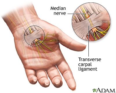 carpal tunnel syndrome.jpg
