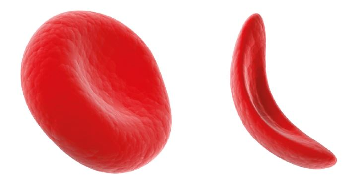 Fig 1: Normal Red Blood Cell and Sickled Red Blood Cell
