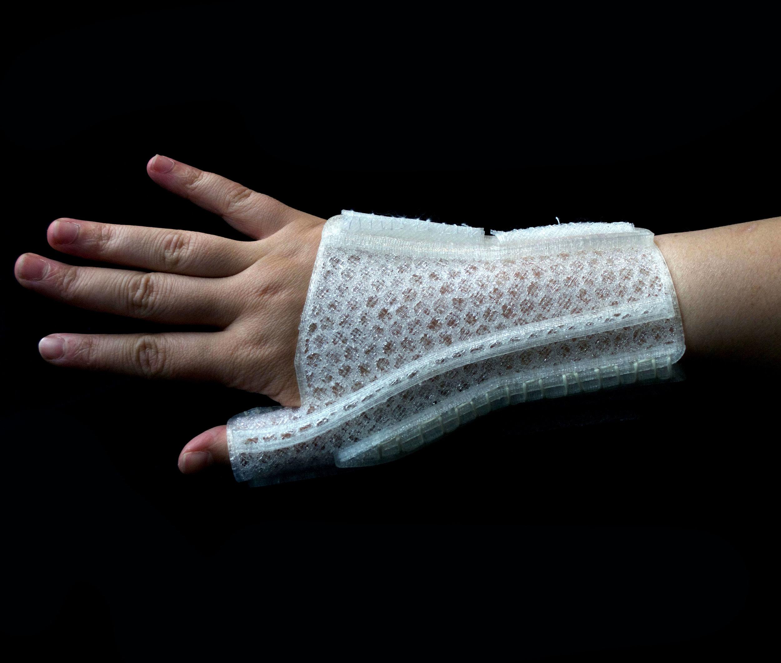 AERA: A Custom, 3D Printed Medical Support Wrist Brace for Gardeners