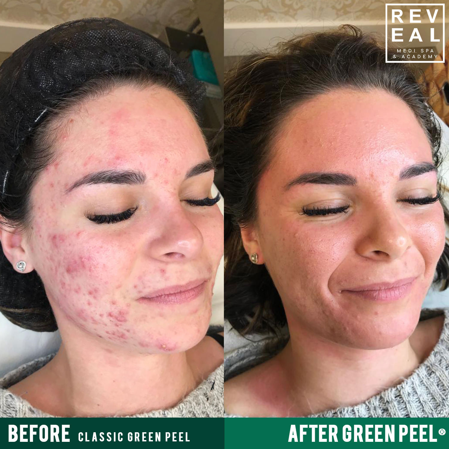 The level 3 treatment can target areas on the body, not just the face! - Targets sagging skin on the body on areas other than the face such as chest, abdominal walls, upper arms, thighs.The difference between Level 3 (Classic) and Level 1 and 2 is that the Level 3 (Classic) involves a deeper pressure applied when massaging the herbal mask onto the skin & has a peeling effect.