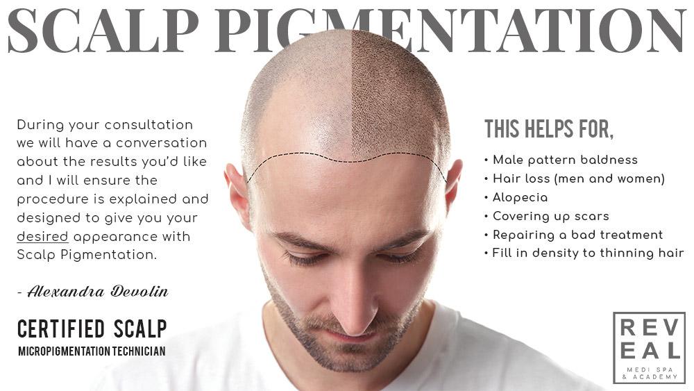Scalp Pigmentation2.jpg