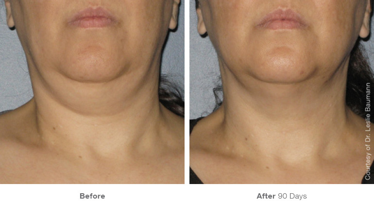 ultherapy-0014-0086w_90day_1tx_neck_gallery.jpg